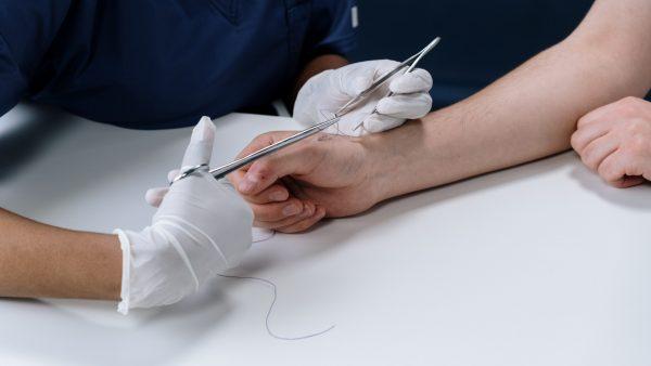 Treatment for Stitches
